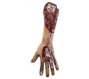 Irti revitty verinen käsivarsi